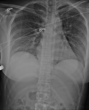 Woman's implant saves her. (Photo: SAGE Journals)