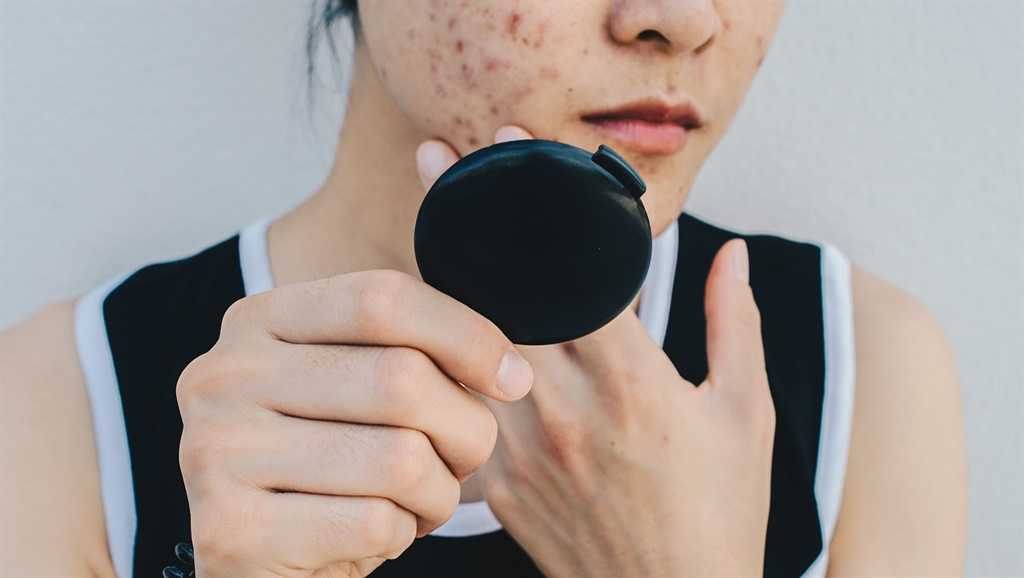 Conceptual shot of Acne & Problem Skin on female face.