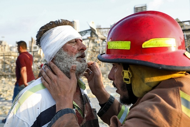 A wounded man is checked by a fireman near the sce