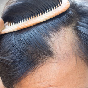man using a comb to gauge hair loss