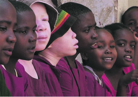In countries around the African Great Lakes region, including Tanzania, some witch doctors believe that the body parts of people with albinism have magic properties.