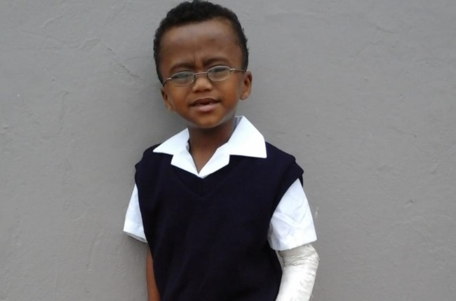 Deshaan Juel's mom Delray says he has fractured over 15 bones since he was diagnosed with Osteogenesis Imperfecta (OI) Type 1. (Photo: Supplied)