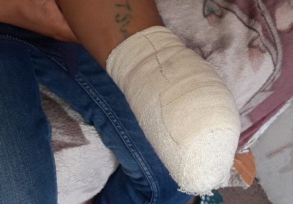 Eugene Jali's hand was severed in a maize mixing machine. (Photo supplied)