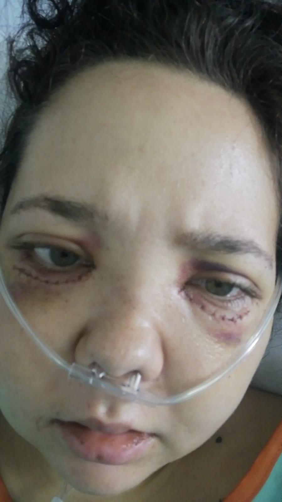 Monique Hepburn na haar operasie. Foto: Verskaf