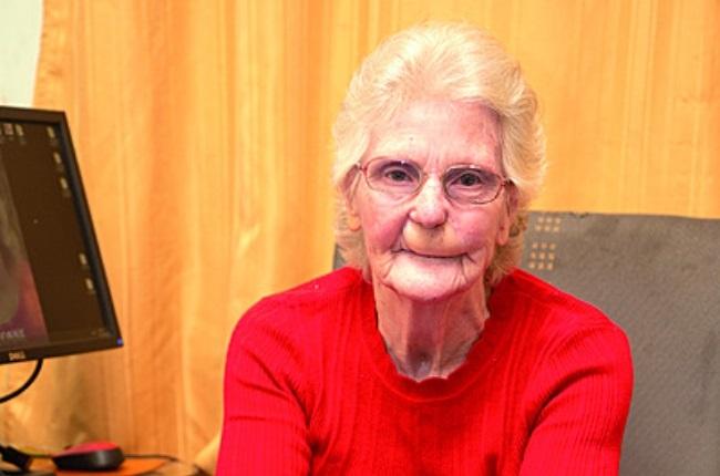 For years Yvonne de Kock tried to treat the sore on her lip herself. She tells of her regret of not heeding medical advice sooner. (Photo: Onkgopotse Koloti)