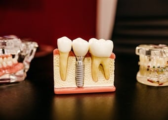 New research shows what makes teeth sensitive to cold, and how to stop it