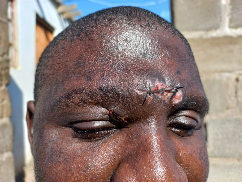 Sonwabo Tshezi, 31, says he was attacked while passing the Ottawa main intersection on Monday, 12 July 2021.