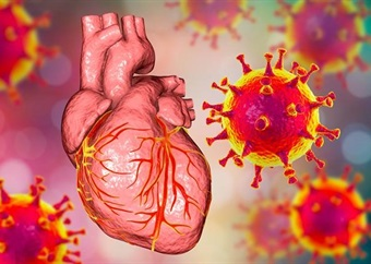 How does Covid-19 impact heart disease? A new study finds out