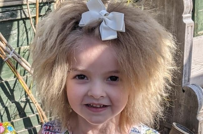Florence Patterson was diagnosed with uncombable hair syndrome at the age of three. (PHOTO: Facebook)