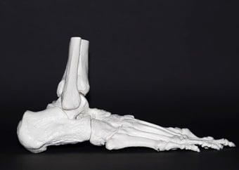 Laat toets jou beendigtheid op Wêrelddag vir Osteoporose