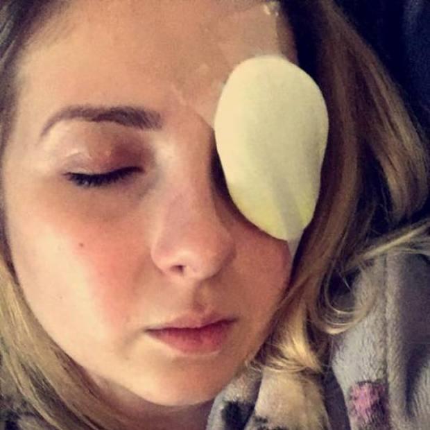 tia good ripped cornea