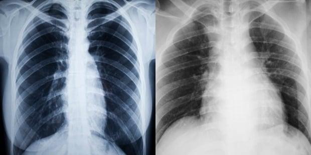 lung, smoke, asthma
