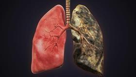 lung, smoke, x-ray