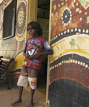 In this June 2009 photo, an Aboriginal boy stands outside a store in the remote outback town of Wadeye in the Northern Terrritory. (File, AP)