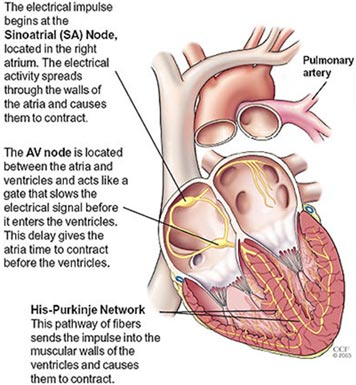 Atrial fibrillation health24 in the state of af there is no organized electrical activity only random fast impulses these are conducted to the ventricles causing a rapid ccuart Images