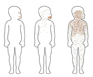 Photos Of Chicken Pox - How To Recognize The Rash | How To ...