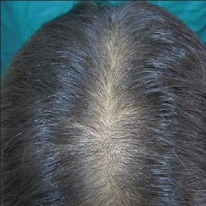 Image of female pattern hair loss