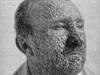 Vanquished foe: smallpox