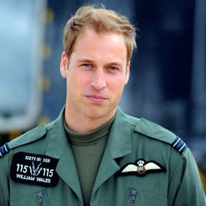 Prince William has male pattern baldness