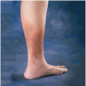 Tired Heavy Legs May Indicate Cvi Health24