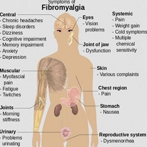 Natural Treatment For Fibromyalgia Video