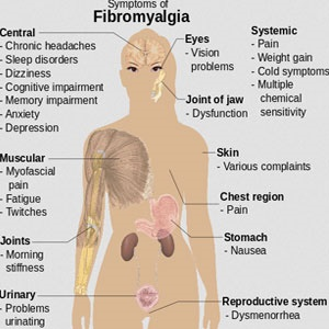 Signs and symptoms of fibromyalgia Health24