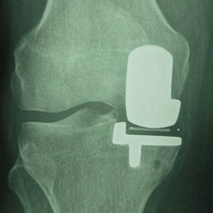 partial knee replacement south africa