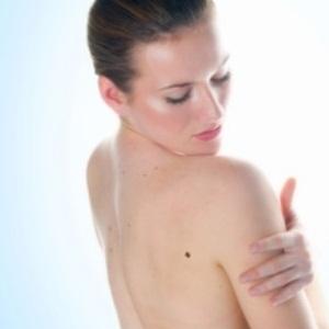 Woman checks skin for urticaria