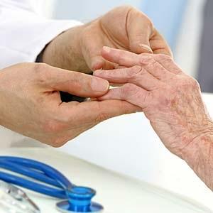 doctor examines rheumatoid arthritis in hands