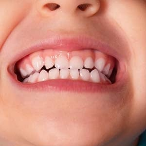 how to clean plaque from toddlers teeth