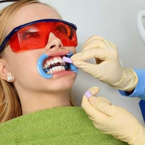 The facts on bleaching your teeth