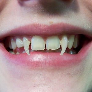 How To Get Vampire Teeth Naturally