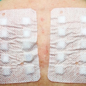 skin patch test for allergies