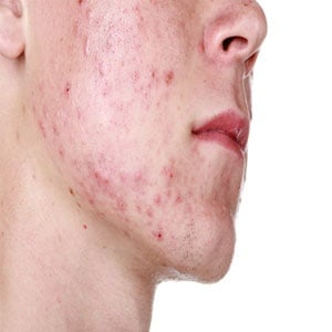 Patient with acne treated with Isotretinoin