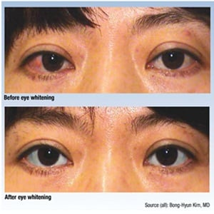 cosmetic eye whitening procedure in Korea