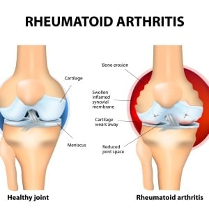 medical image of joints affected by rheumatoid art