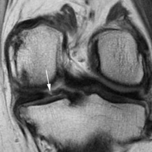 meniscus,arthritis,osteoarthritis,surgery,