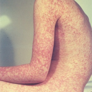 Measles outbreak linked to Disney theme parks