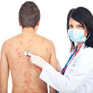 Mumps in adult males