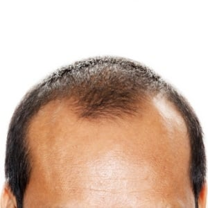 Thinning hair from Shutterstock