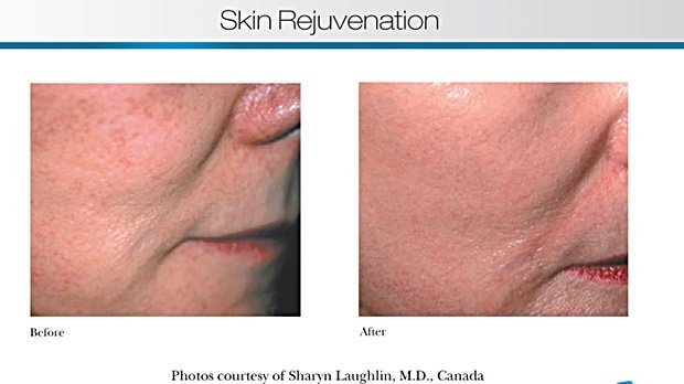 Will a FotoFacial turn back the signs of ageing?