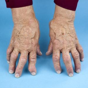 arthritis,rheumatoid arthritis,statins,
