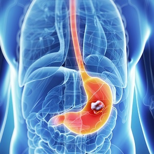 Image of stomach cancer