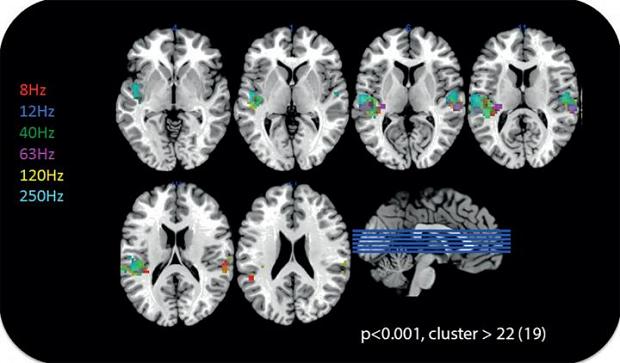 MRI of brain activity perceiving inaudible sounds
