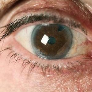 yellow eyes sick