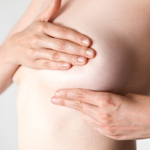 Breast cancer patients choose masectomy