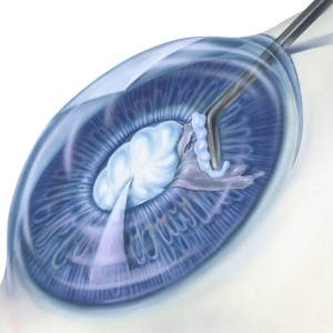 Treating cataracts with surgery