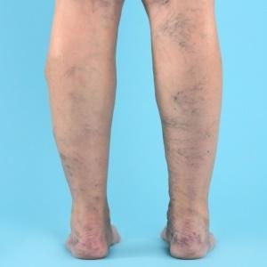 Varicose veins – iStock