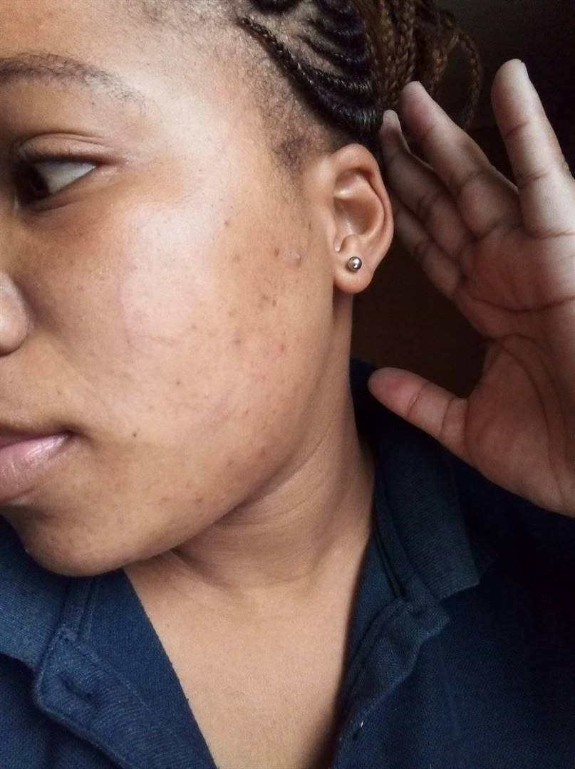 Nompilo Mkhize took to social media to highlight claims that actress Phindile Gwala scratched her on Saturday night after throwing her phone to the ground believing Mkhize was secretly filming her.