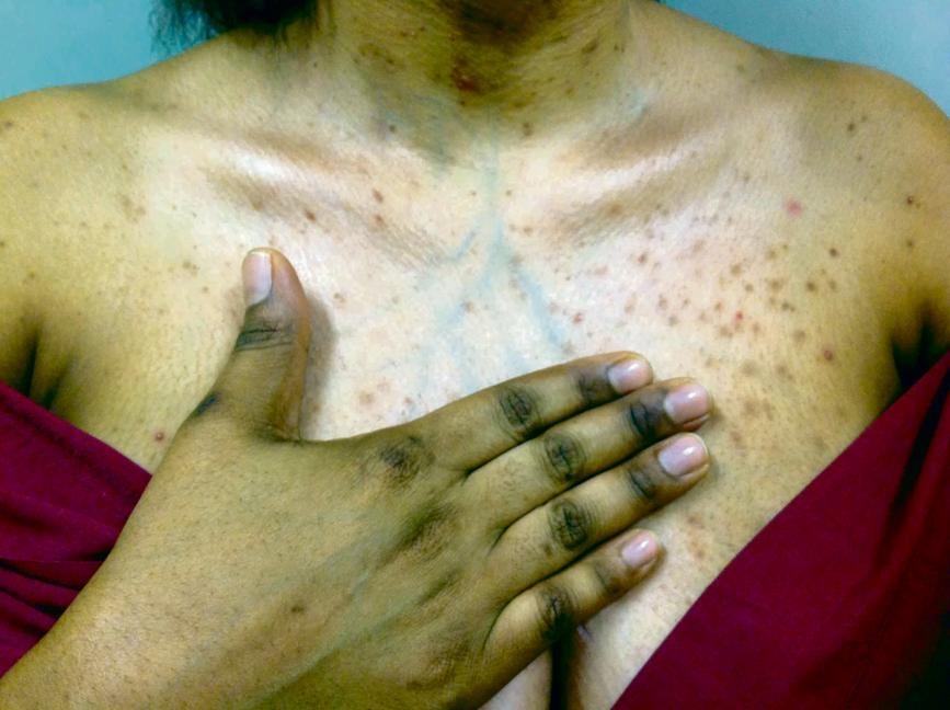 Skin Lightening Case Studies Citypress